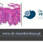 Esofagite eosinofílica
